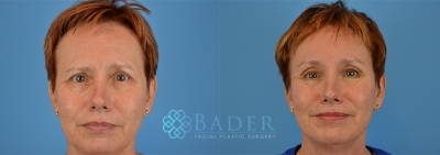Browlift Patient 1 Before & After