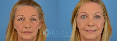 Eyelid Surgery Patient 2 Before & After