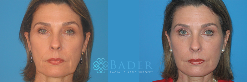 Facelift Surgery Patient 3 Before & After