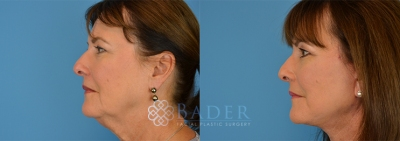 Facelift Surgery Patient 1 Before & After
