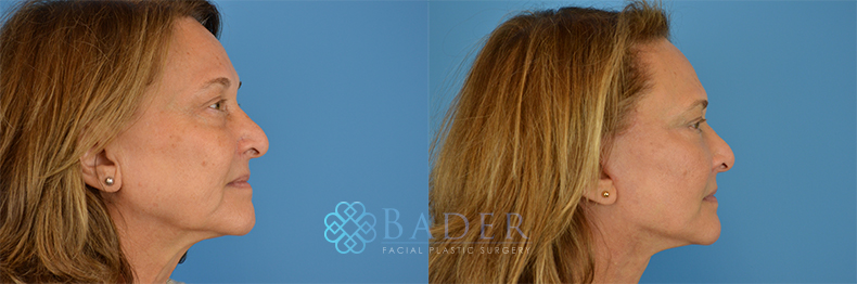 Facelift Surgery Patient 2 Before & After