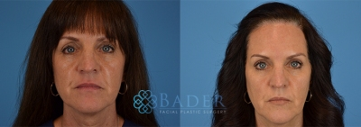 IPL Patient 1 Before & After