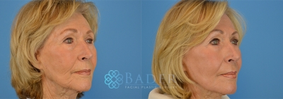 Laser Skin Resurfacing Before & After
