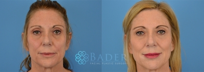 Liquid Facelift Patient 1 Before & After