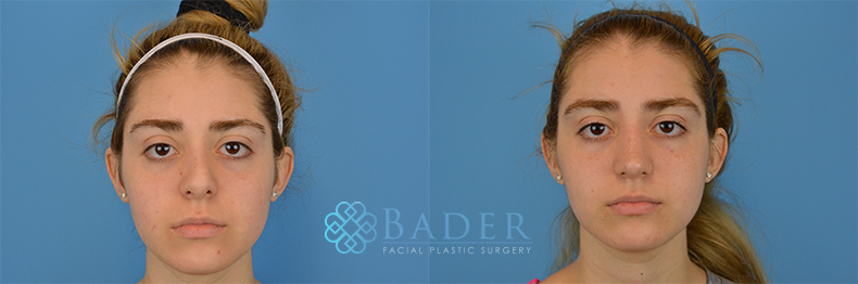 Revision Rhinoplasty Patient 4 Before & After