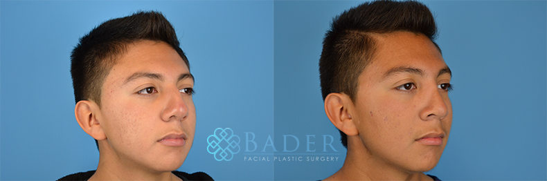 Rhinoplasty Patient 1 Before & After