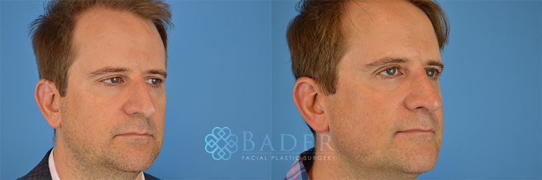 Rhinoplasty Patient 10 Before & After