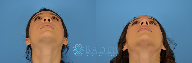 Rhinoplasty Patient 11 Before & After