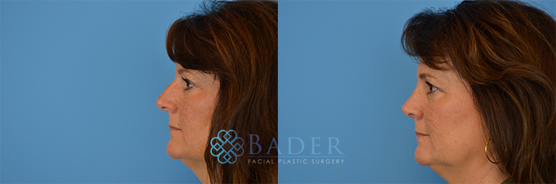 Rhinoplasty Patient 12 Before & After