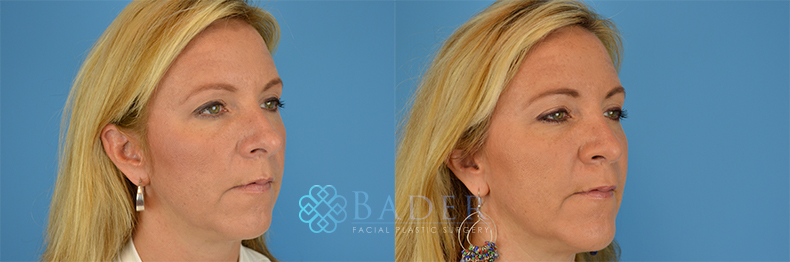 Rhinoplasty Patient 13 Before & After