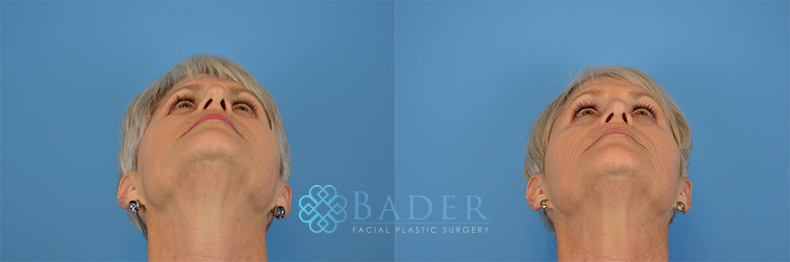 Rhinoplasty Patient 14 Before & After