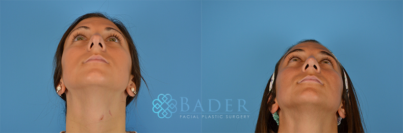 Rhinoplasty Patient 15 Before & After