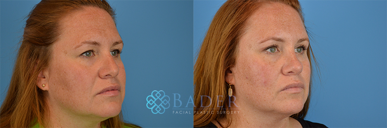 Rhinoplasty Patient 16 Before & After