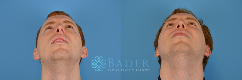 Rhinoplasty Patient 17 Before & After