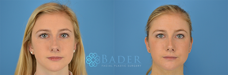 Rhinoplasty Patient 18 Before & After