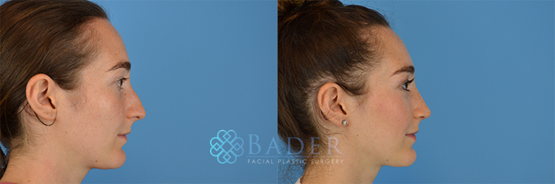 Rhinoplasty Patient 2 Before & After