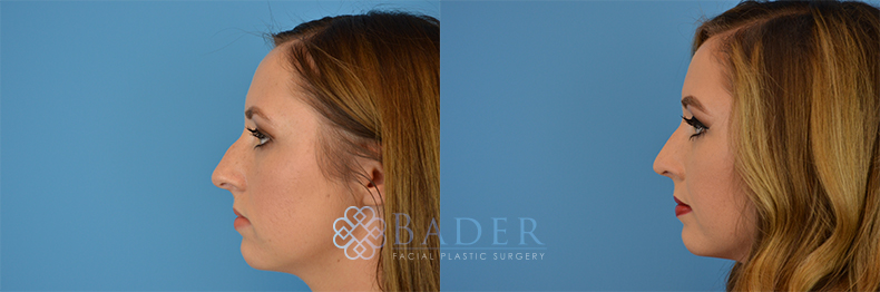 Rhinoplasty Patient 3 Before & After