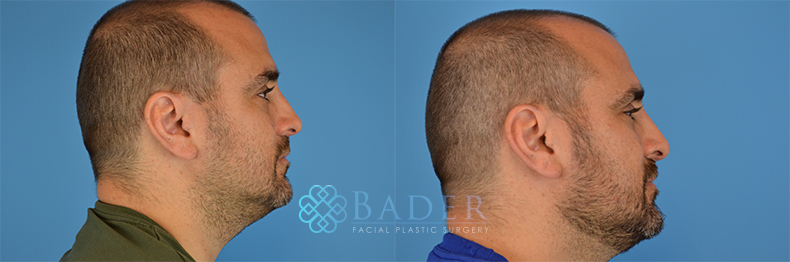 Rhinoplasty Patient 4 Before & After