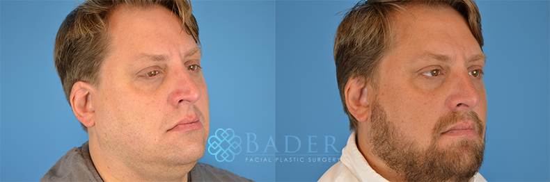 Rhinoplasty Patient 5 Before & After