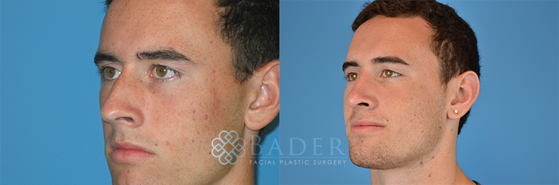 Rhinoplasty Patient 6 Before & After