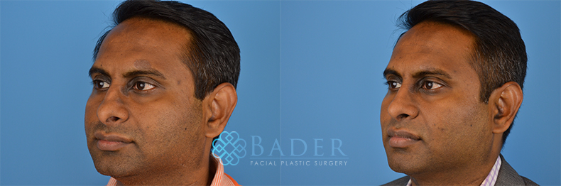 Rhinoplasty Patient 7 Before & After