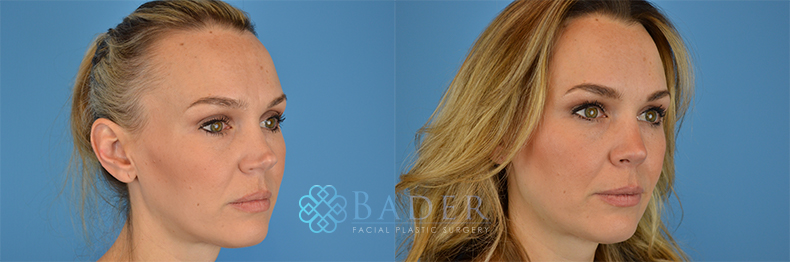 Rhinoplasty Patient 8 Before & After
