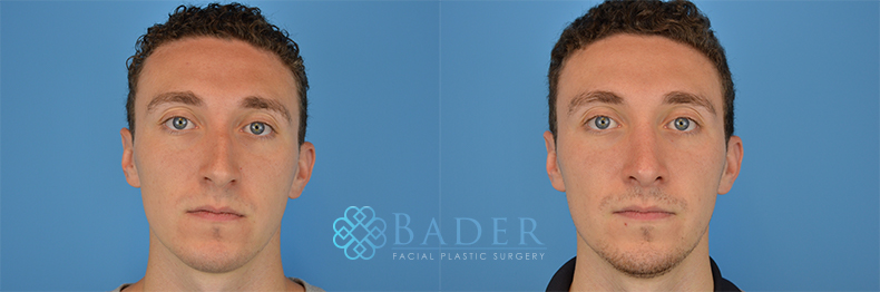 Rhinoplasty Patient 9 Before & After