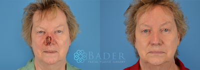 Skin Cancer Reconstruction Before & After
