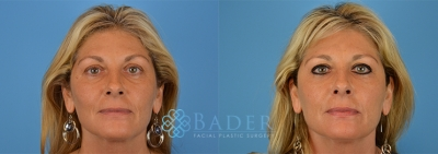 Tear Trough Filler Patient 1 Before & After